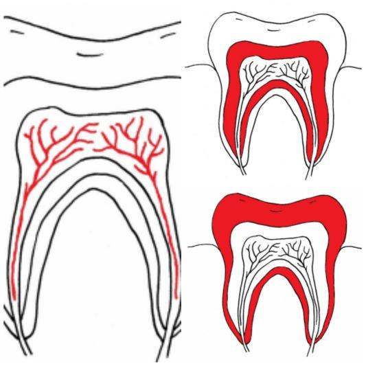diente-1